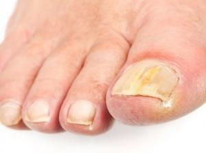 Изображение - Очень болят коленные суставы что делать gribok-nogtej-2-300x222