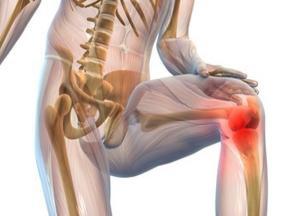 Изображение - Лечение коленных суставов лопухом sustav-300x216